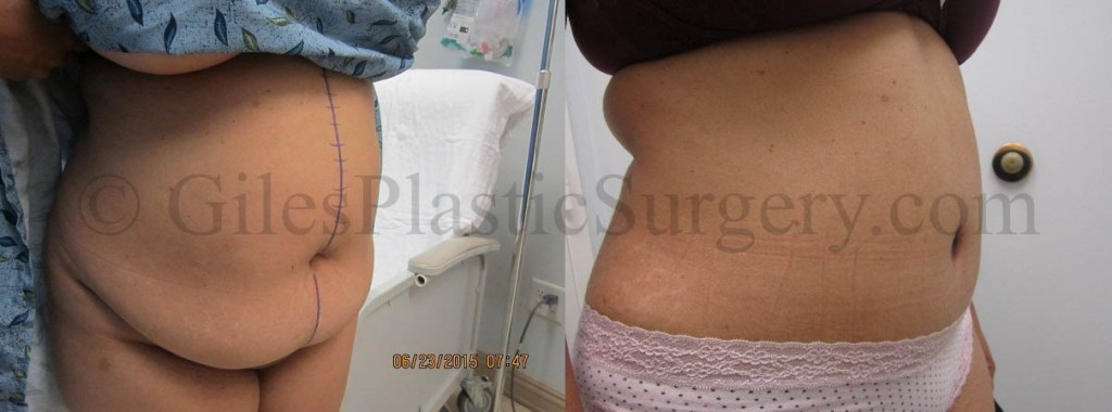 Before and after photos of actual Abdominoplasty plastic surgery patients performed by Stuart Florida Plastic Surgeon P. Dudley Giles