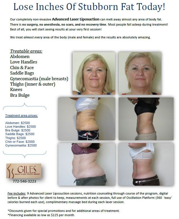 Giles Breast & Body Plastic Surgery is now offering Advanced Laser Liposuction