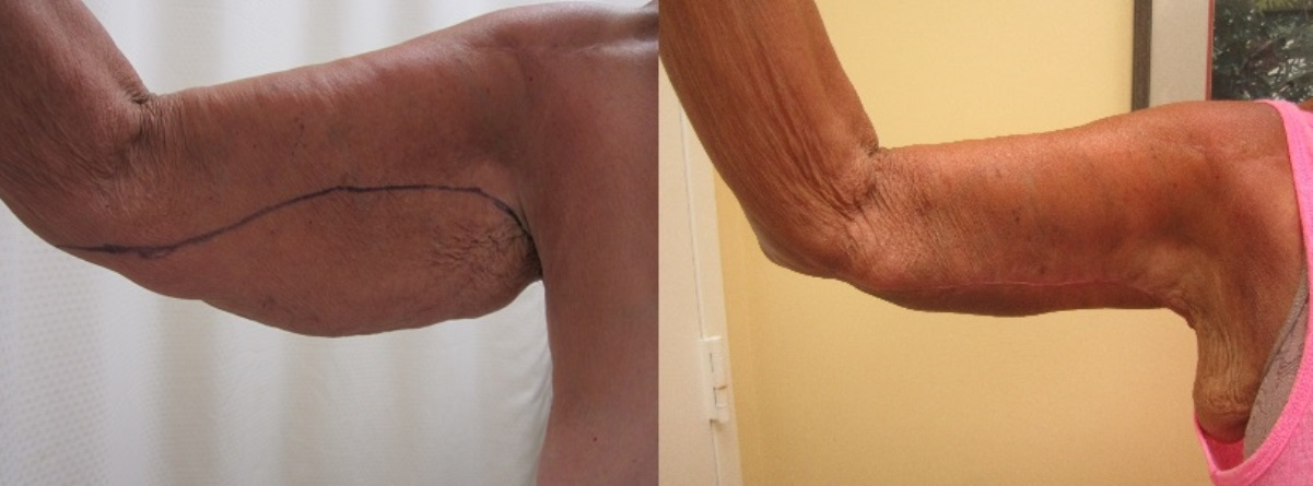Before and after photos of actual arm lift surgery patients performed by Stuart Florida plastic surgeon P. Dudley Giles.