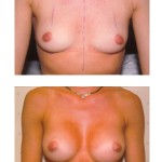 Before & after photographs of breast augmentation surgery patients of Dr. Dudley Giles