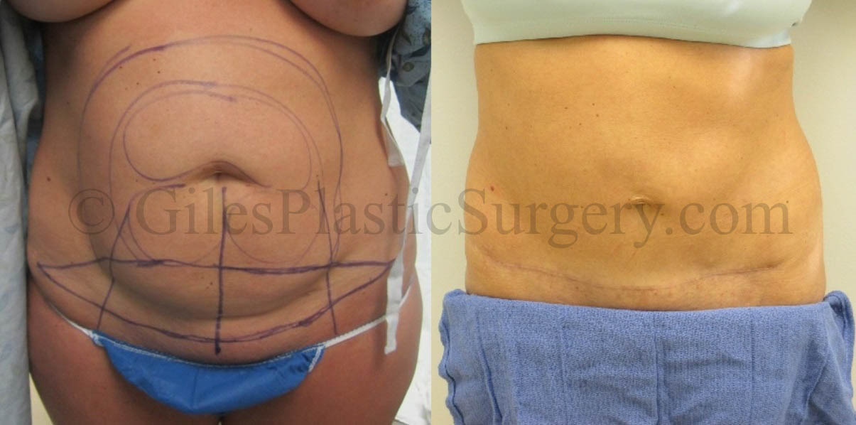 Before and after photos of actual Tummy Tuck plastic surgery patients performed by South Florida Plastic Surgeon P. Dudley Giles