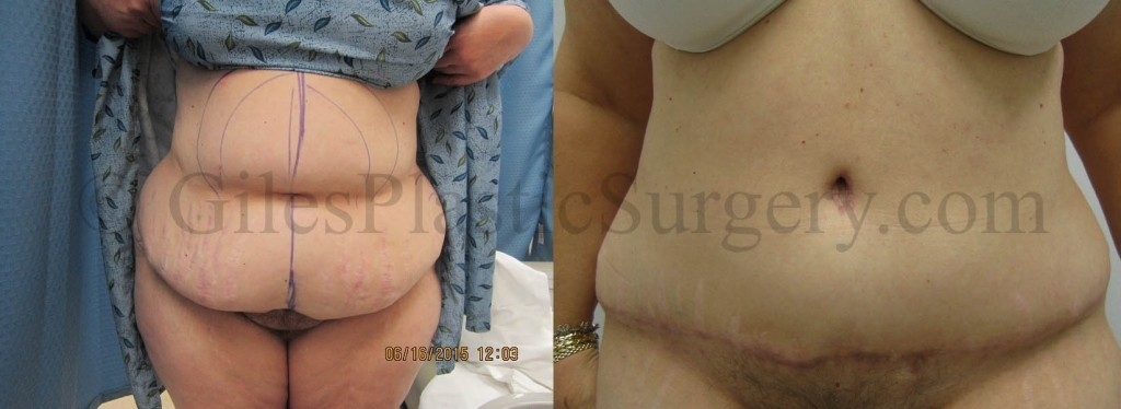 Before and after photos of actual tummy tuck plastic surgery patients performed by South Florida Plastic Surgeon P. Dudley Giles M.D.