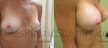 Breast Augmentation Before & After photographs of actual plastic surgery patients of P. Dudley Giles, M.D.