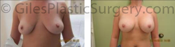 Breast Augmentation before and after photos by South Florida Plastic Surgeon P. Dudley Giles.