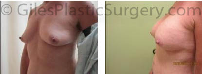 Breast Augmentation before and after photos by Stuart Florida Plastic Surgeon P. Dudley Giles.