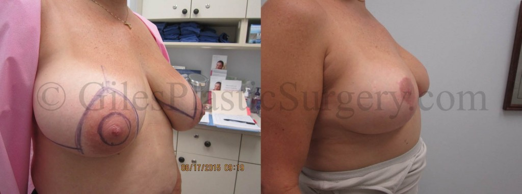 Before and after photographs of breast reduction plastic surgery performed by Stuart Florida Cosmetic Surgeon P. Dudley Giles