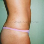 Liposuction before and after photos by South Florida Plastic Surgeon P. Dudley Giles.