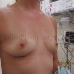 Breast Augmentation Before & After photographs of actual plastic surgery patients of Stuart Florida cosmetic surgeon P. Dudley Giles, M.D.