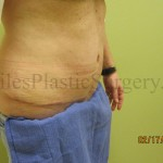 Before and after photos of actual tummy tuck plastic surgery patients performed by Stuart Florida Plastic Surgeon P. Dudley Giles M.D.
