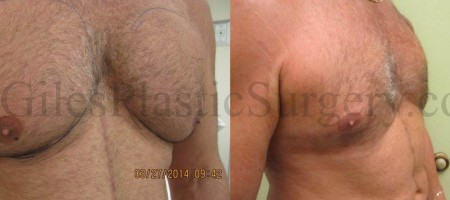 Gynecomastia Treatment With Advanced Laser Liposuction Before & After photographs of actual patients of P. Dudley Giles, M.D.