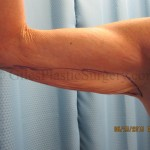before and after photos of arm lift plastic surgery by P. Dudley Giles, M.D