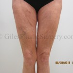 before and after photos of thigh lift plastic surgery by P. Dudley Giles, M.D
