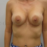 Breast Augmentation before & after photographs of actual plastic surgery patients of Treasure Coast Florida cosmetic surgeon P. Dudley Giles, M.D.