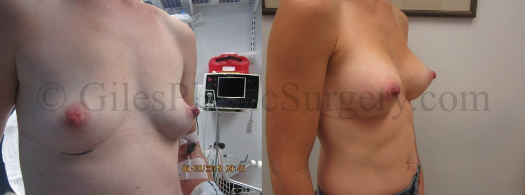 Breast Augmentation before & after photographs of actual plastic surgery patients of Palm Beach Gardens Florida cosmetic surgeon P. Dudley Giles, M.D.