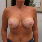 Breast Augmentation before & after photographs of actual plastic surgery patients of Jupiter Florida cosmetic surgeon P. Dudley Giles, M.D.
