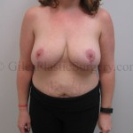 Before and after photographs of breast reduction plastic surgery performed by Jupiter Florida Cosmetic Surgeon P. Dudley Giles