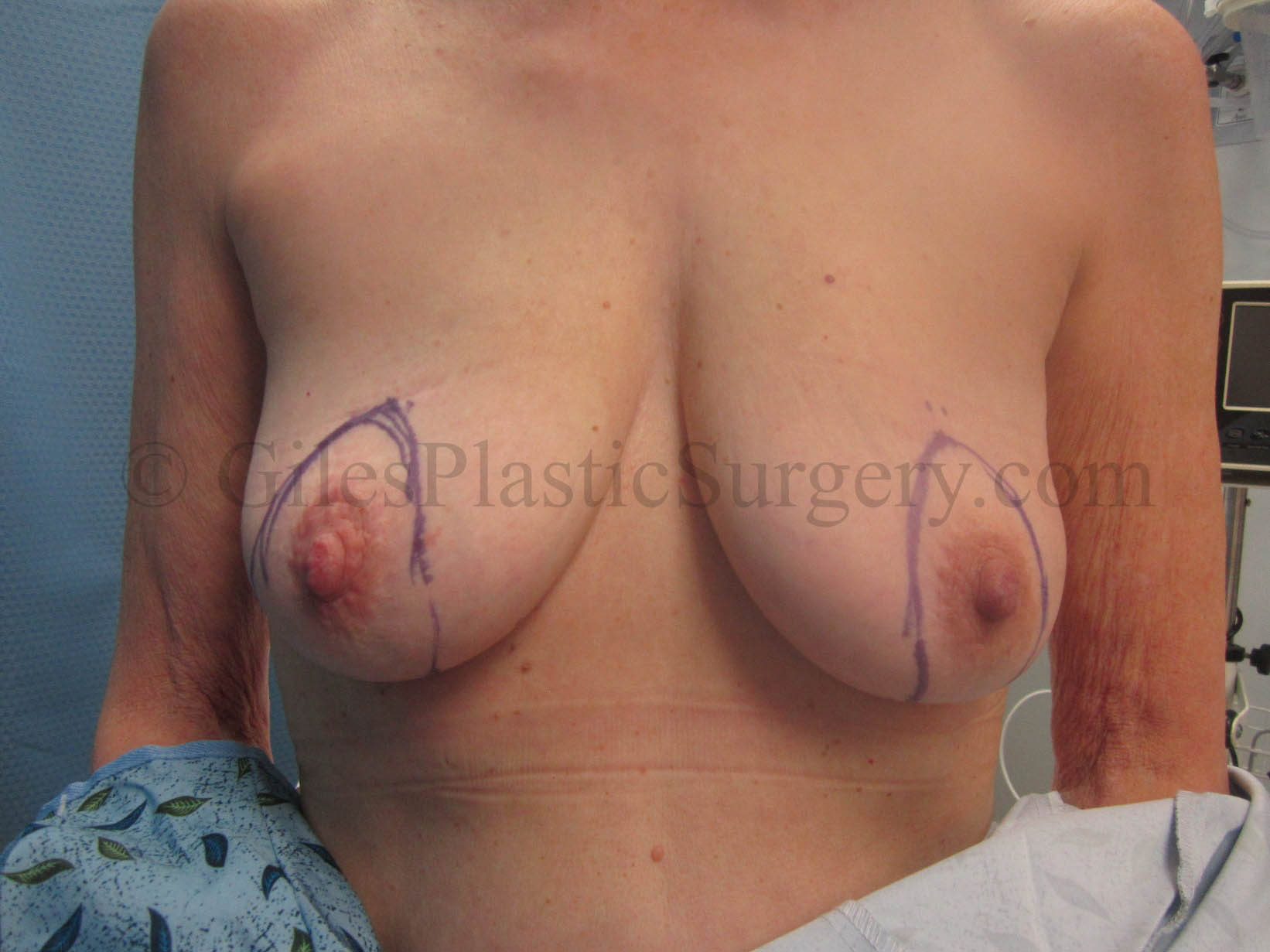 Vinings breast augmentation surgeon with you