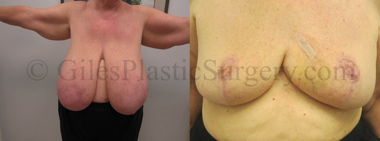 Before and after photographs of breast reduction plastic surgery performed by South Florida Cosmetic Surgeon P. Dudley Giles