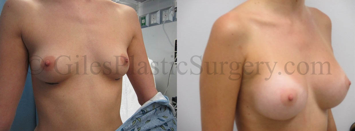 Breast Augmentation before & after photographs of actual plastic surgery patients of South Florida cosmetic surgeon P. Dudley Giles, M.D.