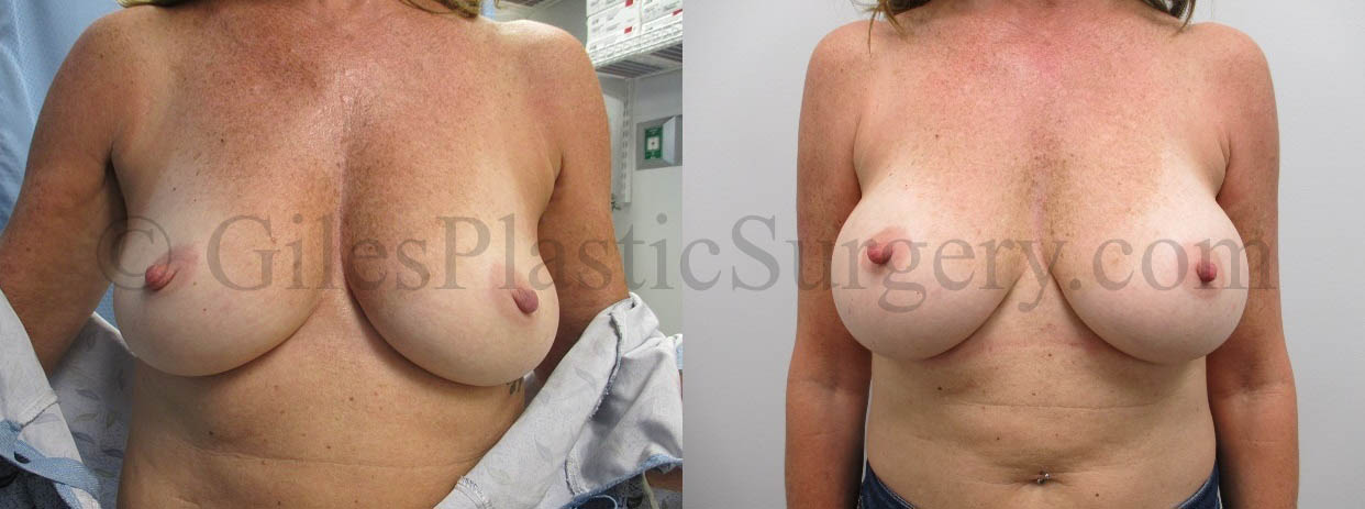 Bilateral Breast Augmentation Patient with Silicone 335 CC Mentor High Profile Implants
