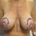 South Florida Breast Implant Removal with Breast Lift Before and After Photos