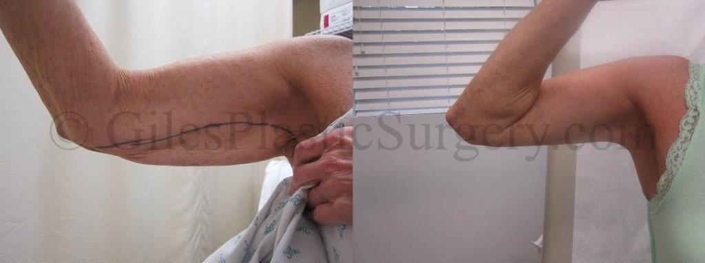 Before and After Photos of Arm Lift Plastic Surgery by Stuart Florida Plastic Surgeon  P. Dudley Giles, M.D