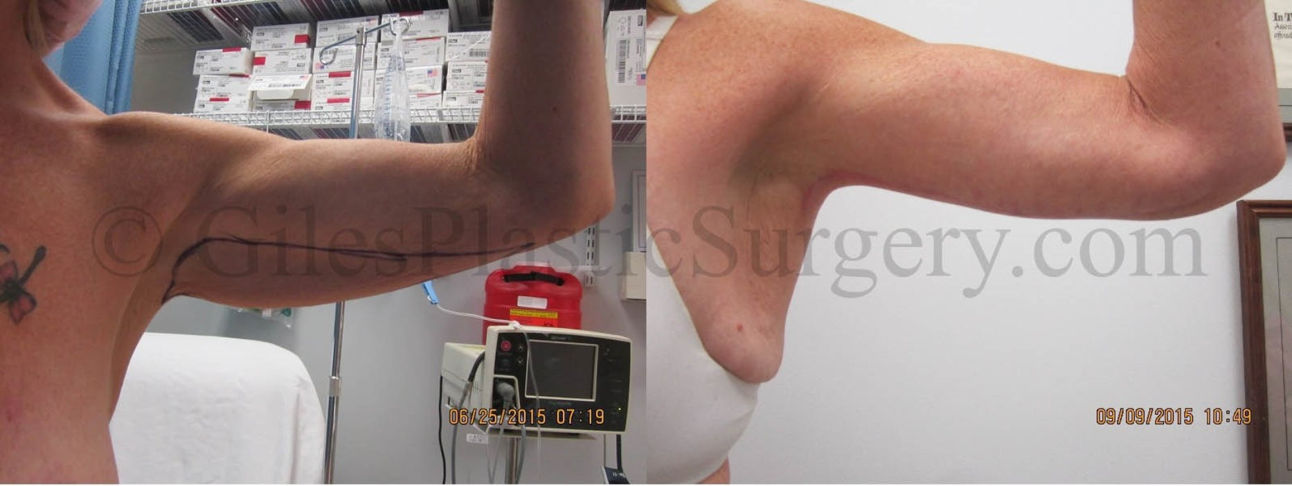 Before and after photos of arm lift cosmetic surgery by Giles Breast & Body Plastic Surgery