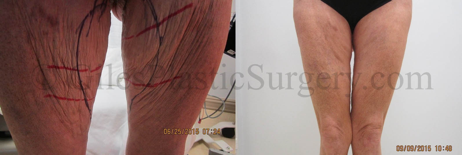 Before and after photos of thigh lift plastic surgery by Giles Breast and Body Plastic Surgery