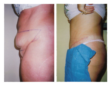 Before and after photos of a tummy tuck procedure.