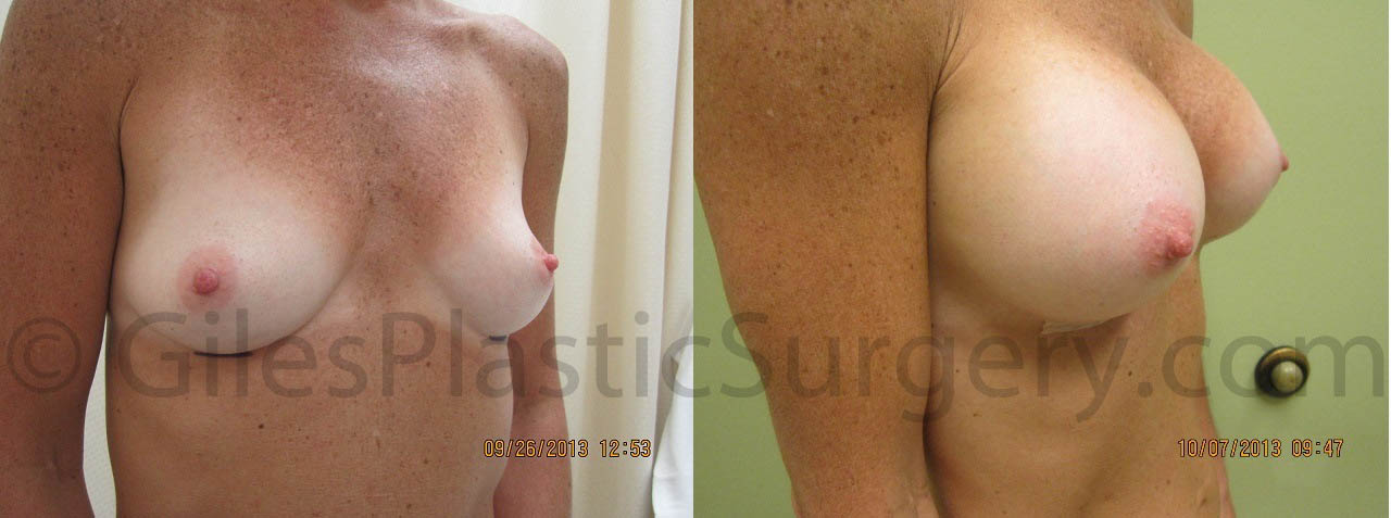 Before & after photographs of South Florida breast augmentation surgery patients performed by Stuart Florida Plastic Surgeon Dr. P. Dudley Giles