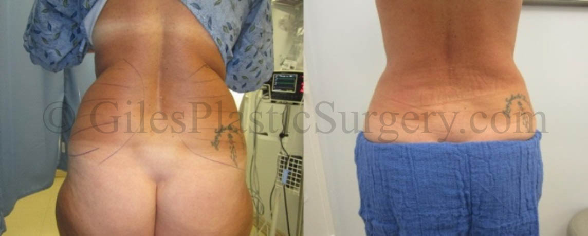 Liposuction before and after photos by South Florida Plastic Surgeon P. Dudley Giles