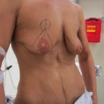 Before and after photos of a Bilateral Breast Lift performed by South Florida plastic Surgeon P. Dudley Giles