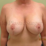 Breast augmentation with lift before & after photographs of actual plastic surgery patients of South Florida cosmetic surgeon P. Dudley Giles, M.D.
