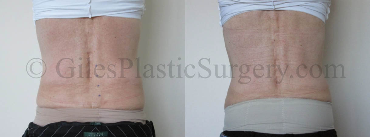 Advanced Laser Liposuction Body Sculpting before & after photographs of actual patients of South Florida cosmetic surgeon P. Dudley Giles, M.D.
