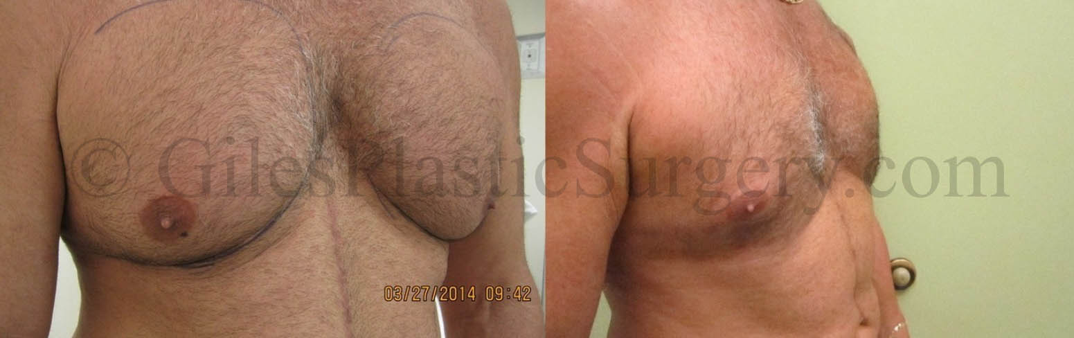 Gynecomastia Treatment With Liposuction Before & After photographs of actual patients of P. Dudley Giles, M.D.