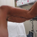 Before & after photographs of arm lift surgery patients of Stuart Florida cosmetic surgeon P. Dudley Giles, M.D.