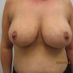 Before and after photos of an actual breast lift plastic surgery patient performed by South Florida plastic surgeon P. Dudley Giles M.D.