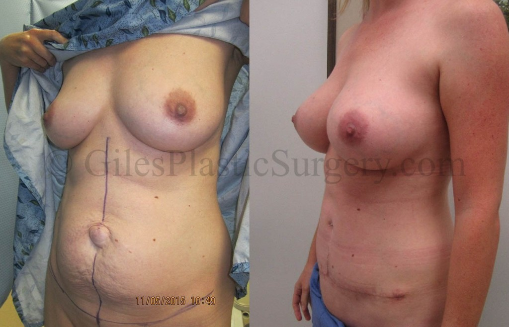 Before and after photos of actual mommy makeover plastic surgery patients performed by South Florida Plastic Surgeon P. Dudley Giles