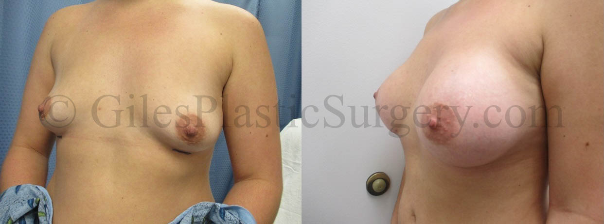 Bilateral Breast Augmentation Patient with Silicone 375 CC Mentor High Profile Implants