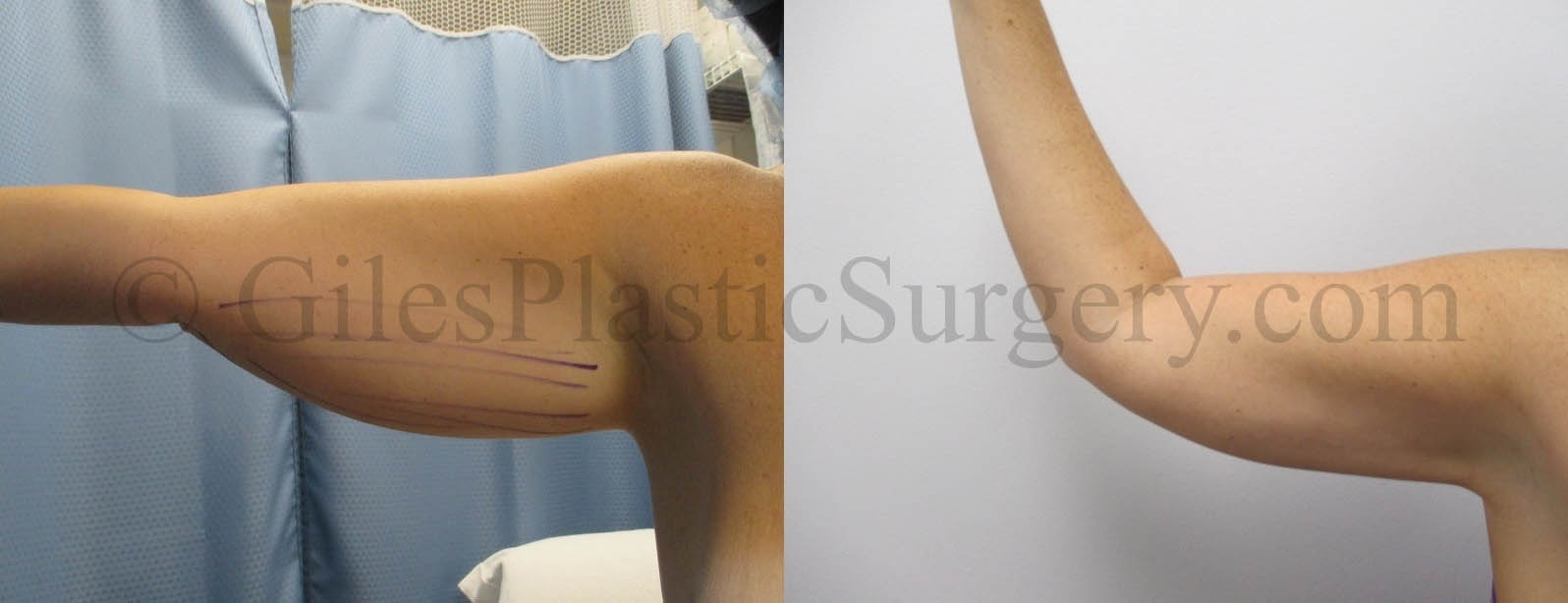 Liposuction of the arms before and after photos by South Florida Plastic Surgeon P. Dudley Giles