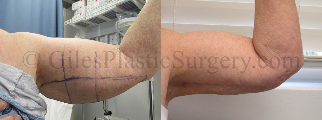 Before and after photos of brachioplasty (arm lift) surgery by South Florida Plastic Surgeon P. Dudley Giles, M.D