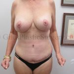South Florida Tummy Tuck With Breast Implant Exchange and Breast Lift Before and After Photos