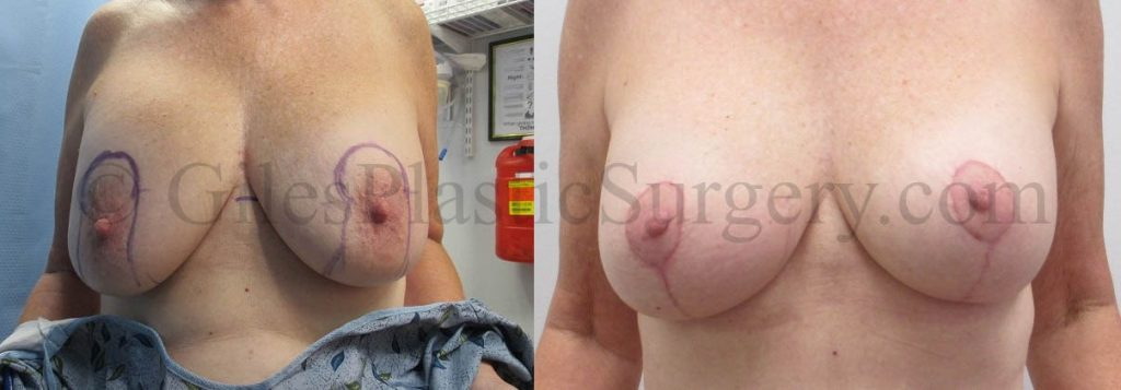 Bilateral Breast Augmentation Replacement and Breast Lift before and after photos