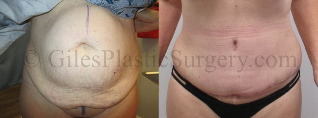 Bilateral Breast Augmentation Replacement and Breast Lift with Tummy Tuck