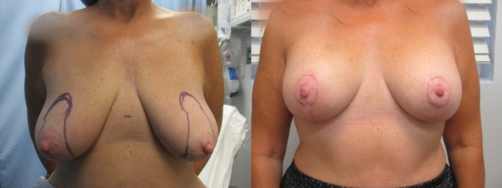 Before and after photos of an actual breast lift with augmentation plastic surgery patient performed by South Florida breast augmentation specialist P. Dudley Giles M.D.